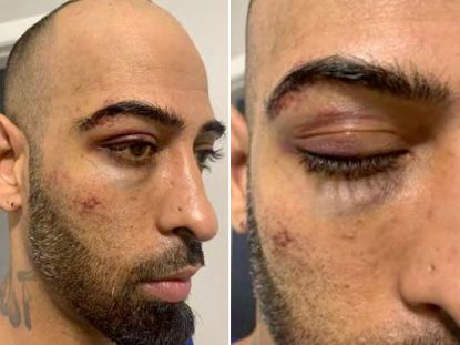 Brooklyn man beaten unconscious after high-speed chase by NYPD cops who wrongly thought he was involved in shooting